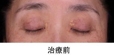 黄色腫 (1).JPG
